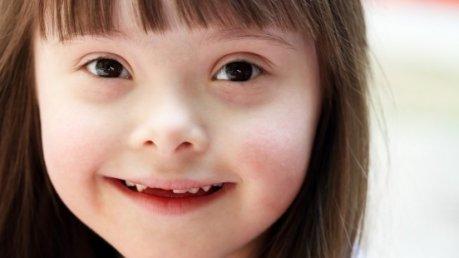 Sindrome di Down. Domenica 9 Ottobre si celebra la Giornata Nazionale -foto sintomicura.com