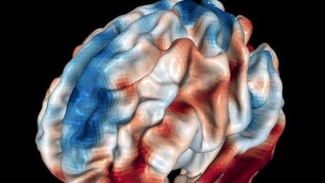 cervello perdono
